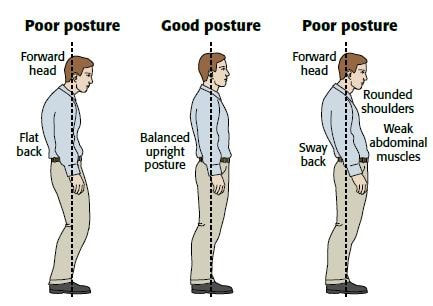 Examples of Poor & Good Posture
